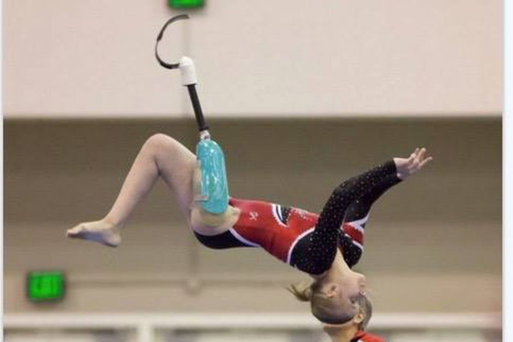 Image of The gymnast didn't let losing a leg stop her from competing